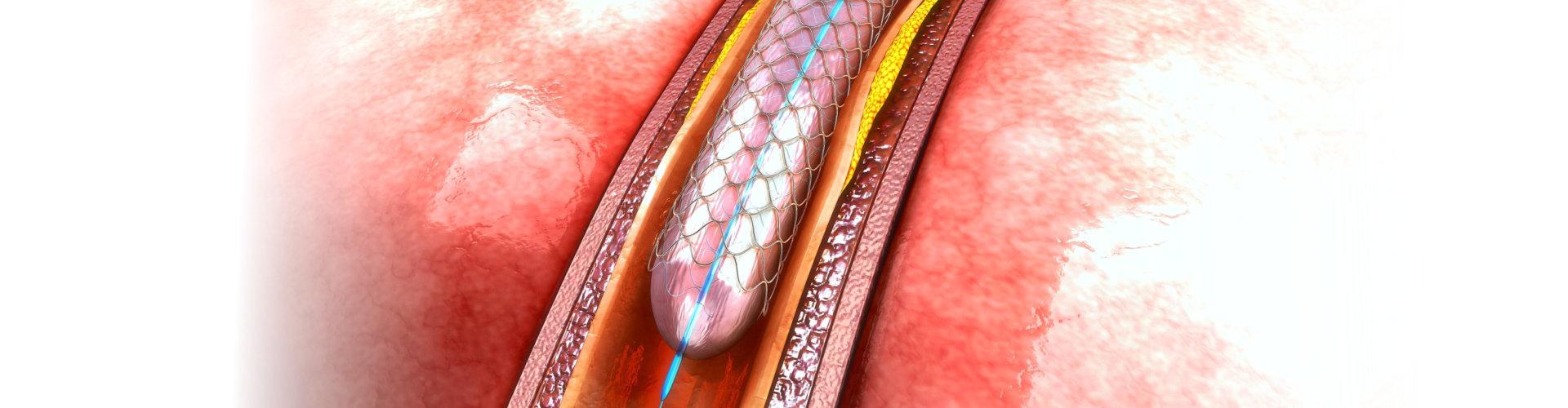 3d rendered angioplasty